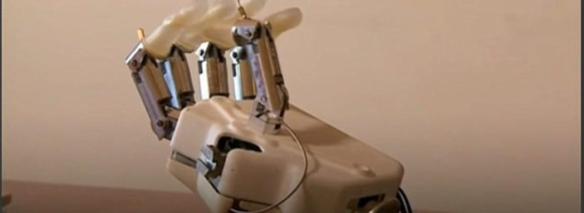 Scientist have developed the first bionic hand with a sense of touch