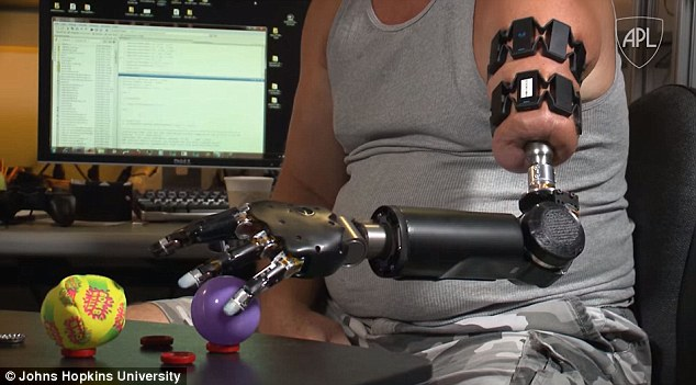 The new system replaces the need for harnesses when working with the Modular Prosthetic Limb (MPL), which can be uncomfortable after prolonged wear. For Matheny, it has helped to return many natural motions. In order to make a prosthetic like the MPL work, a patient must first undergo targeted muscle reinnervation