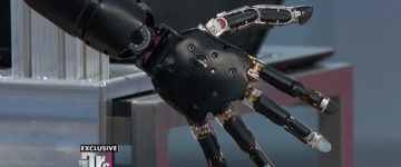 Meet the most advanced prosthetic arm in the World
